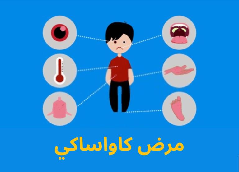 مرض كاواساكي : الأعراض وسبل العلاج