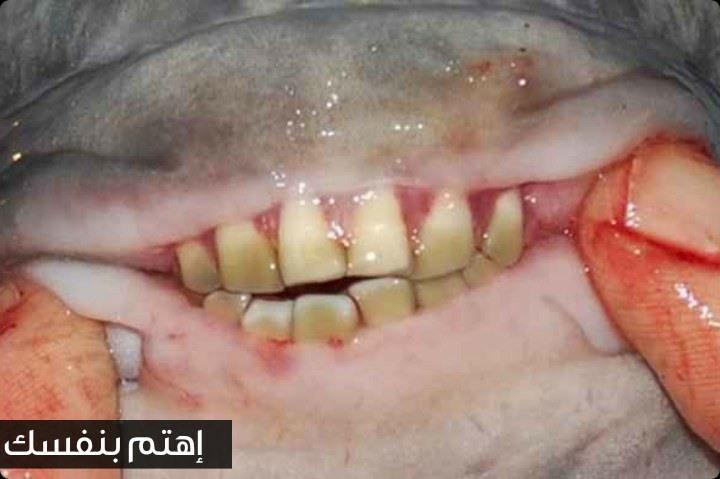 سمكة الباكو الأسطورية التي تملك أسنانا مثل أسنان البشر