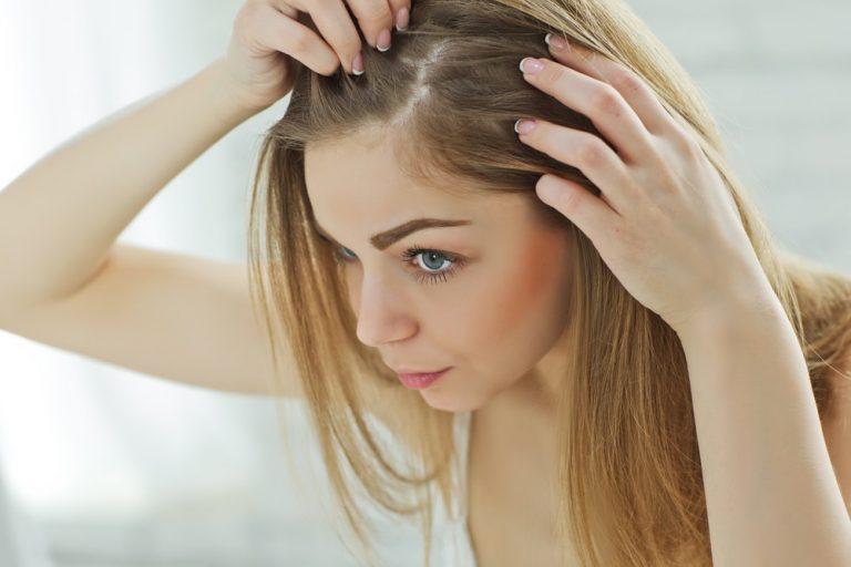 علاج قشرة الشعر نهائيا – ودع قشرة الشعر للأبد