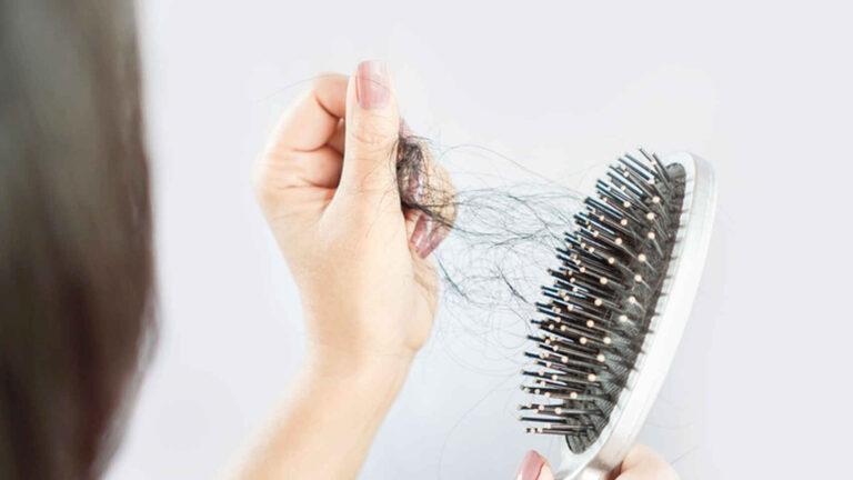 مشاكل تساقط الشعر : افضل الحلول المنزلية والطبيعية